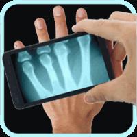 X-ray Scan для Microsoft Lumia 532