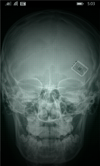 Скачать X-ray Scan для Microsoft Lumia 540